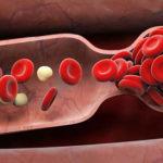arteriopathie